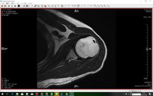 MRI_4